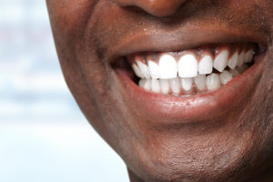 The Relationship Between Cancer and Oral Health